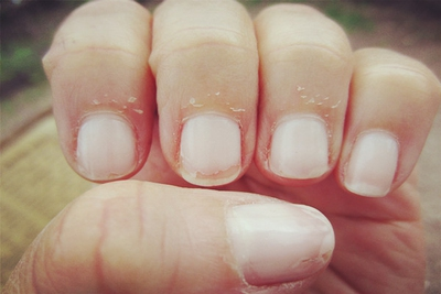 Dry Skin Around Your Nail: Causes and Tips to Help - enkimd