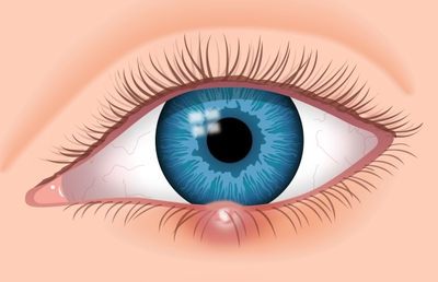 Causes and Treatments of White Bump on the Eyelids - enkimd