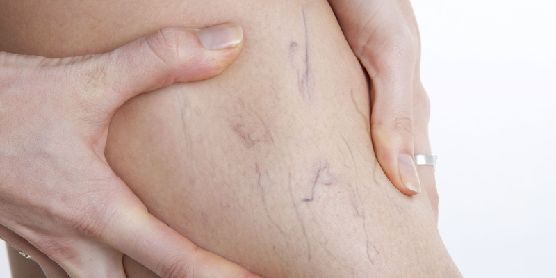 Is Yellow Cervical Mucus a Sign of Early Pregnancy? - enkimd